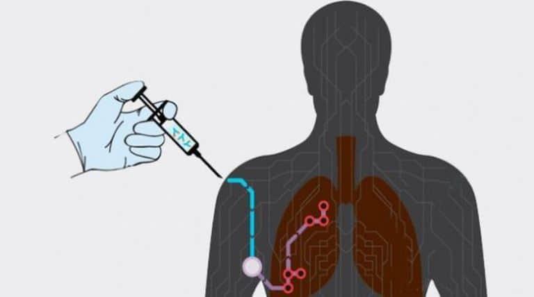 ¡A pasos agigantados! Vacuna Contra Cáncer de Pulmón en Cuba