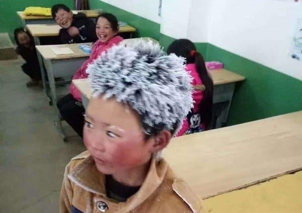 El niño con cabello congelado recibe más de 300 mil dólares en donaciones