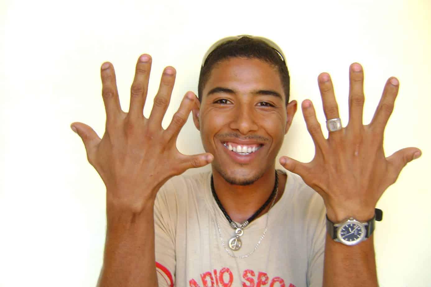 Leonardo, el joven cubano apodado 'el 24' por su la increíble cantidad de dedos de sus manos y sus pies